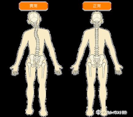 骨のズレ 異常 正常