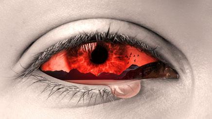 gerötete Bindehaut (Trockene Augen Symptome, Sicca Syndrom)