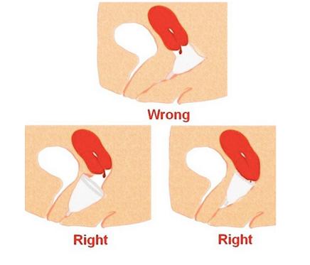 Position menstrual cup Menstruationstasse Muttermund Monatshygiene