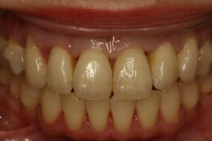 歯と歯の間の歯茎が窪んでしまっています.