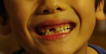 配達から帰ったら、チビの歯が抜けてました!