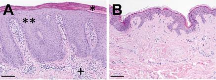 Bei der Schuppenflechte (A) zeigt sich im Vergleich zur gesunden Haut (B) eine vermehrte Schuppung (*) und Verbreiterung der obersten Hautschicht (**).  Darunter eine Ansammlung von Entzündungszellen. (Abbildung: Universitäts-Hautklinik Würzburg)