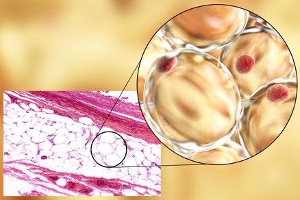 Fettzellen des subkutanen Fettgewebes