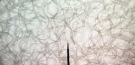 Mikrowürmer unter dem Mikroskop