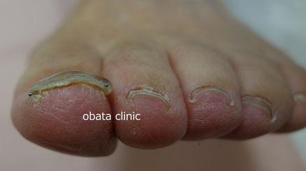 1.5ヵ月後。炎症・痛み無く、爪も平坦。ワイヤーを抜去した。