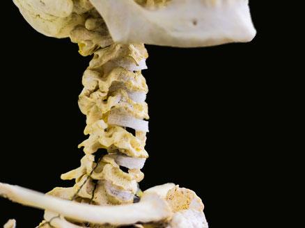 Myogelosenbehandlung gegen verhärtete Muskulatur