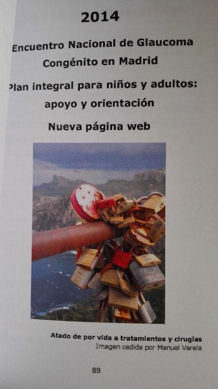 """Imagen publicada en el libro """"10 años ayudando"""" - Asociación de glaucoma para afectados y familiares - AGAF."""