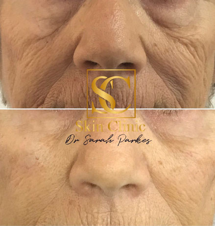 dermal filler before and after picture Dr Sarah Parkes Skin Clinic