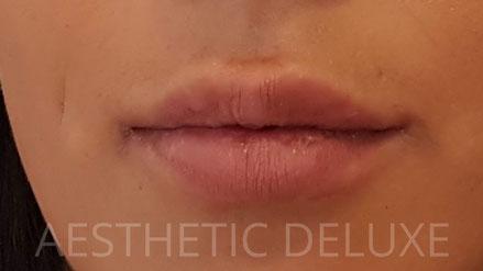 Lippen aufspritzen vorher nachher Bilder, vor der Behandlung mit Hyaluron