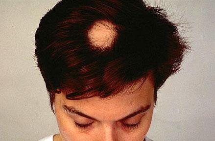 minoxidil para frenar la alopecia areata