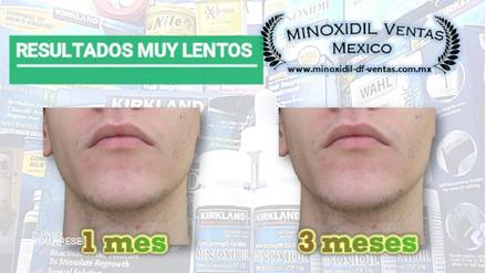 por que no funciona el minoxidil barba