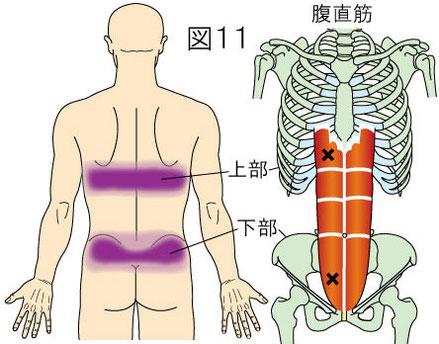 腹直筋上部と下部トリガーポイントによる背部の痛み