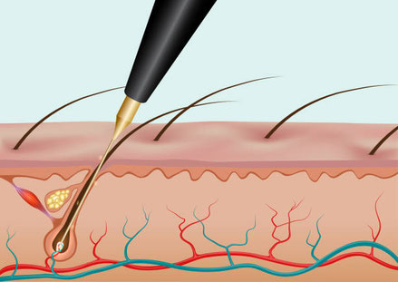 electrolysis, permanent hair removal, hair free, smooth skin, forever, no more hair