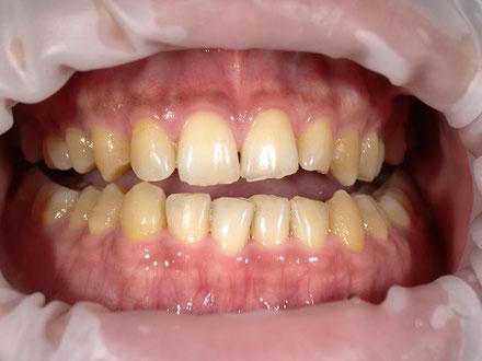 八戸市 くぼた歯科 ホワイトニング