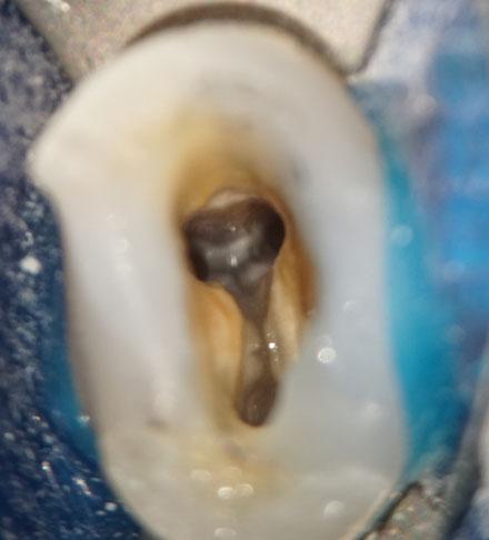 Ober Prömolar mit 3 Wurzelkanälen nach der Aufbereitung und in der Vergrößerung