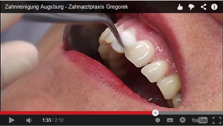 Professionelle Zahnreinigung (PZR) Augsburg - Zahnärztin Gregorek Augsburg