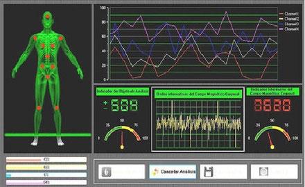 Análisis Cuántico de Resonancia Magnética