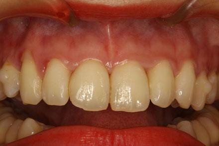 歯茎の形が尖って三角形の形になりました.