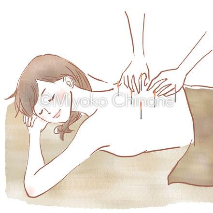 鍼灸 女性 イラスト