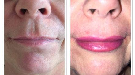 Lippenkontur mit Schattierung; vorher-nachher