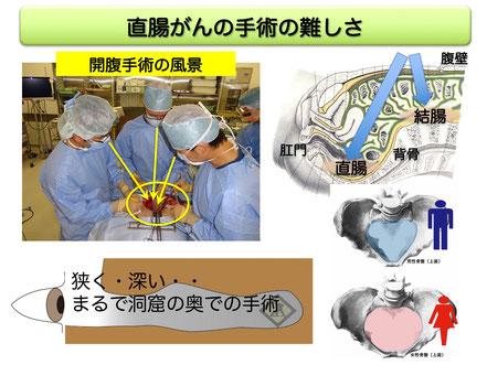 直腸癌手術の難しさ
