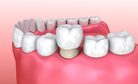 やぎた歯科医院_仮歯イメージ画像