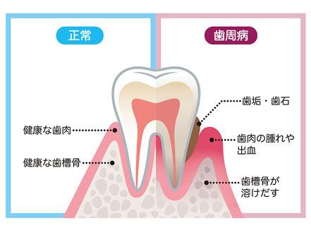 やぎた歯科医院_歯周病治療・歯石取りイメージ画像
