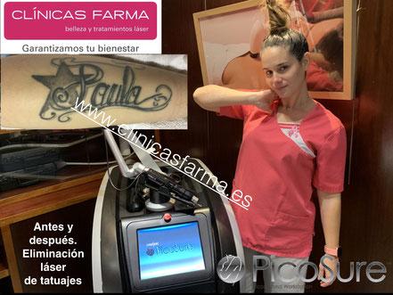 f0f5e2a9bd LÁSER: Eliminación Tatuajes - Belleza y tratamientos láser. Asturias ...