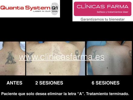 Paciente de Clínicas Farma C/ Magnus Blikstad.