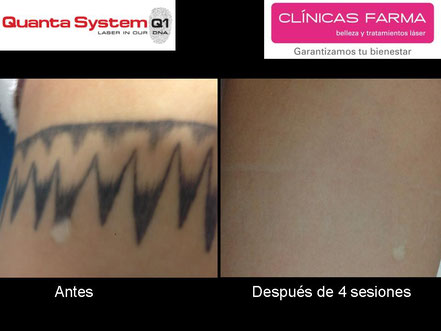 Paciente de Clínicas Farma de C/ Magnus Blikstad que acudió tras su descontento (y marca permanente blanca) por probar un láser en un centro de tatuajes.