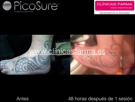 Paciente atendida el Clínicas Farma el 13-jun-2016