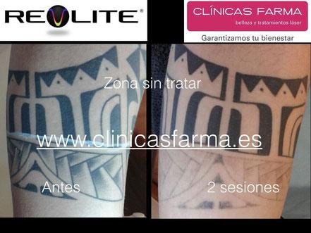 Paciente de Clínicas Farma Oviedo que desea eliminar la parte inferior del tatuaje con motivo de presentarse a una oposición.