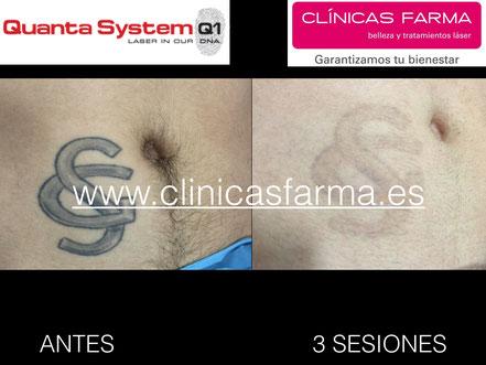 Antes de iniciar el tratamiento y antes de la última sesión. Paciente de Clínicas Farma C/ Magnus Blikstad.