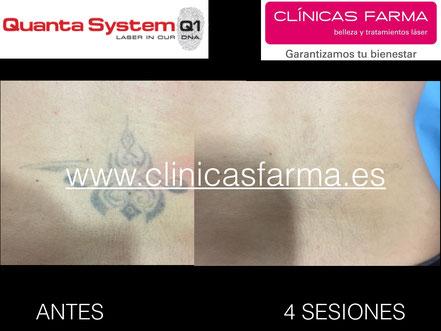 Paciente de Clínicas Farma C/ Magnus Blikstad