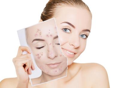 Vorher-Nachher: junge Frau mit einmal mit unreiner Haut und mit klarem Hautbild