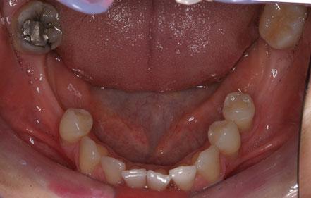 Versorgung im UK: 45 Implantat, 46 Implantat. Diese Zähne werden ebenfalls vollkeramisch versorgt.