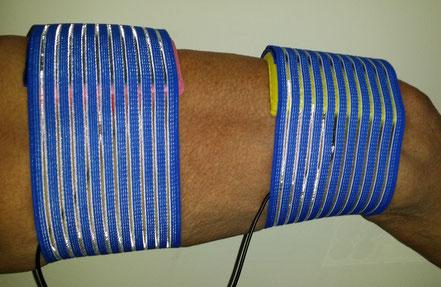 Schwellstrom Musculus quadriceps