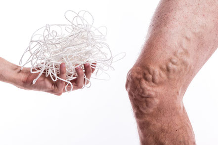 Bulging Veins - Symptoms, Causes, Treatments. Bulging varicose veins, some of the worst that Dr. Nero has ever seen. Removal of these large varicose veins can be done in our office located in Bonita Springs, Florida.