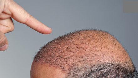 minoxidil alopecia androgena