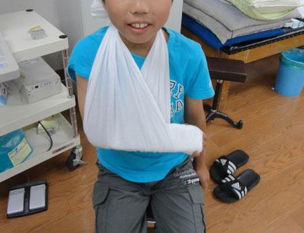手首の骨折に対する固定