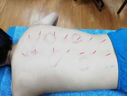 背腰部のハリ療法