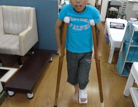 足首の骨折に対する固定