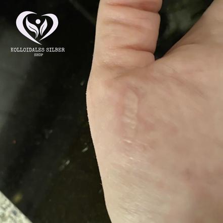 Kleine Brandwunde auf der Haut der Hand nach 2 Stunden