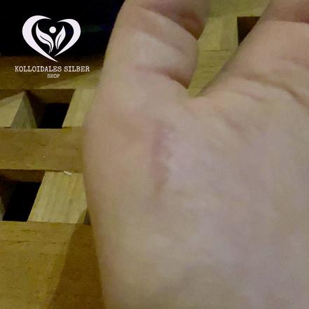 Kleine Brandwunde auf der Haut der Hand am Tag danach