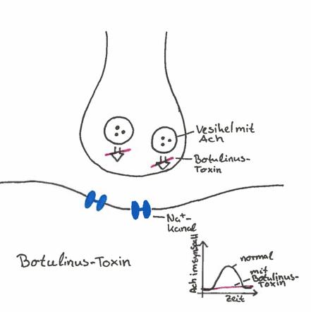 Abb. 3: Synapsengift Botulinus-Toxin