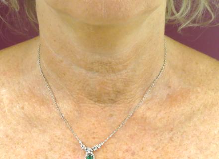 lifting del collo con fili in pdo: dopo
