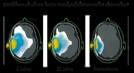 Handystrahlung_Mobilfunk_Krebs_Zellveränderung_Körpererwärmung