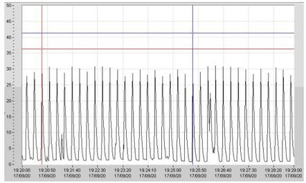 20 Impulse innerhalb von 300 sec ergibt ein 15 sec Impulsintervall.