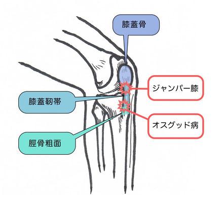 膝蓋靭帯炎