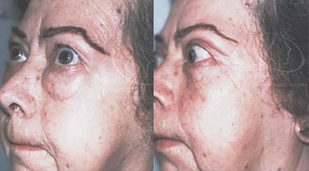 Cirugia de parpados
